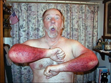 The poison ivy king! He got this famous rash by digging a hole in the ground and scraping the earth up with his forearms - not realizing that the roots in the hole were poison ivy. Which proves you can get the rash from the roots. This photo has become the symbol for the folks at Ivy Block.